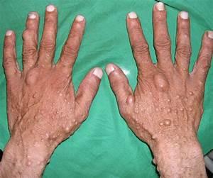 Neurofibromatosis - Pictures, Type 1, Type 2, Symptoms ...