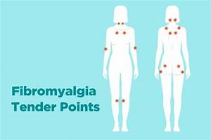 Fibromyalgia Tender Points  What And Where Are They