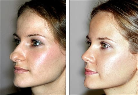 Questions To Ask Your Rhinoplasty Surgeon Before The Surgery. State Insurance Company Cloud Desktop Service. Ministry Of Public Administration. Cd30 Positive Lymphoproliferative Disorder. Kids With Schizophrenia Plumber Los Angeles Ca. Best Hosting For Ruby On Rails. How To Find My Primary And Secondary Dns. Ford Dealers Detroit Area Plumbers San Diego. Insurance Billing Service Stirling Solar Dish