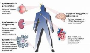 Препараты при осложнениях диабет 2 типа