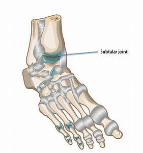 What causes pain under my heel? - Physio Comes to You