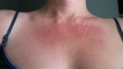 Overcoming 10 Years Of Misdiagnosed Skin