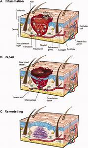 Three Classical Phases In Adult Skin Wound Healing   A  A