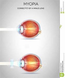Myopia, Nearsightedness Stock Vector - Image: 52876557
