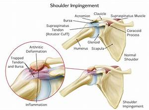 Physical Therapist U0026 39 S Guide To Shoulder Impingement