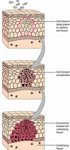Tissue Injury And Aging