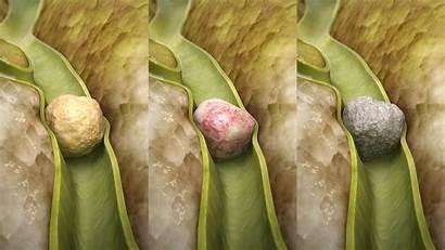 Gallstone Gallstones Liver Stone Cholesterol Pigment Types
