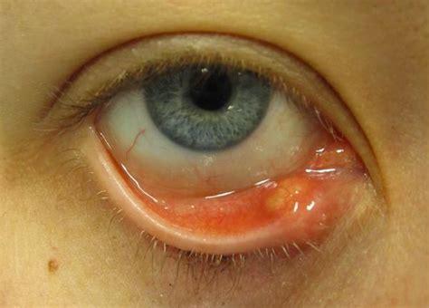 Causes, Symptoms, Pictures, Treatment