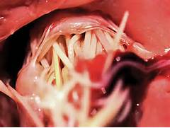 FIGURE 3  A mass of adult heartworms lodged within the tricuspid valve      Heartworm Adult