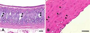 Photomicrograph Of Mineralization In The Trachea  A  And