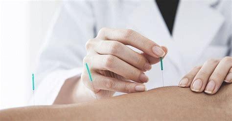acupuncture pour maigrir l acupuncture pour maigrir v 233 ritable rem 232 de ou l 233 gende