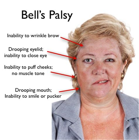 What Is Bell's Palsy?  Herbs Solutions By Nature. Hotel French Signs Of Stroke. Posterior Signs. Storefront Signs. Essential Oil Signs. Basilar Artery Signs Of Stroke. C_id 15047769&destination_id Signs. Emotion Signs. Endless Sling Signs