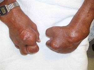 Gout  Patient Information