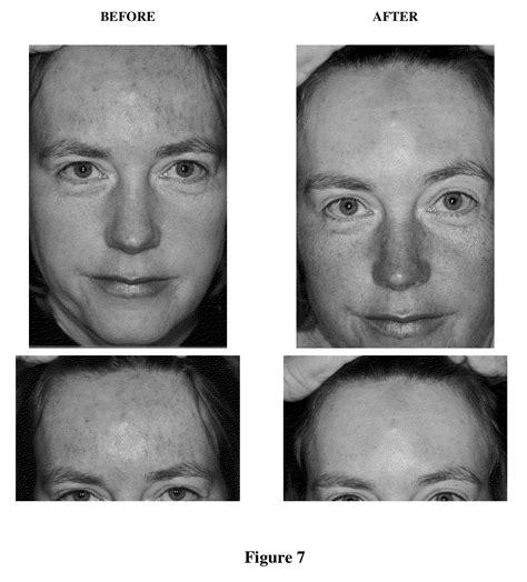 Dry Cracked Skin On Foreskin Sethleporecom