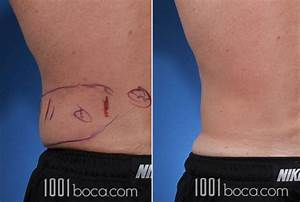 Coolsculpting Before and After Photos | Steiger Facial ...