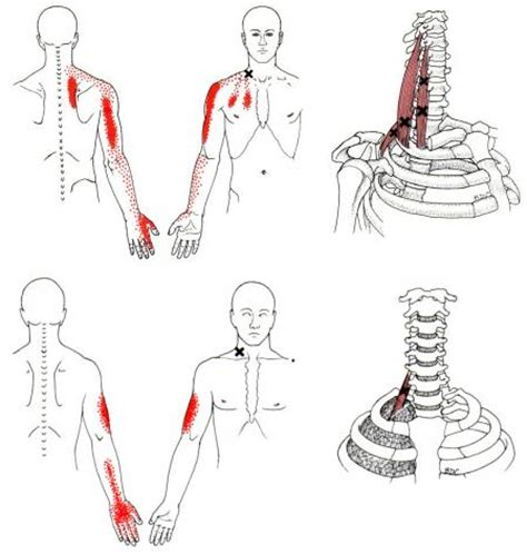 Trigger Finger Diagram by Scalene The Trigger Point Referred Guide