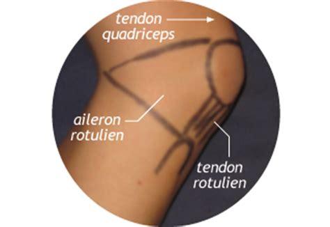 douleur au genou en position assise rotule clinique du sport