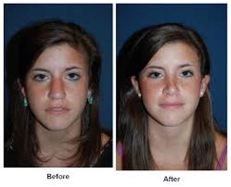 Before And After Rhinoplasty  Best Rhinoplasty. Online Nonprofit Management Certificate Program. Ad Server Architecture 2009 Dodge Avenger Sxt. How Much Does Termite Treatment Cost. Cellulite Treatment Chicago Bend Body Shop. Software Engineering Training Courses. Door Manufacturing Companies Iso 14001 Ems. Phlebotomy Training San Antonio. Paralegal Employment Agencies