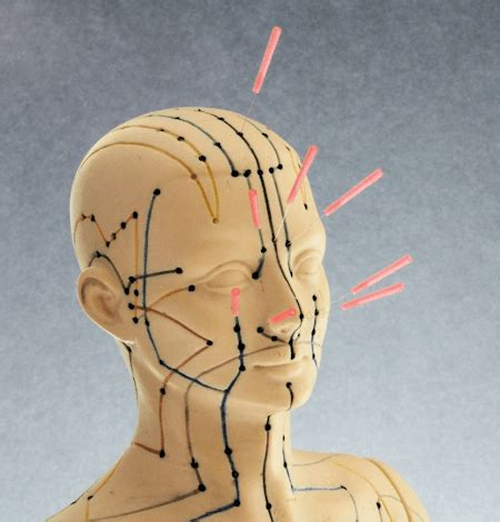 facial acupuncture points  needles
