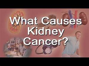What Causes Kidney Cancer? - YouTube