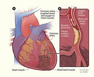 Africans, inactivity increases risk of heart disease (CVD ...