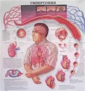 Лечения артериальная гипертензия