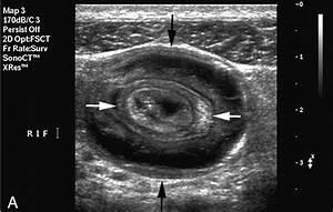 Intussusception Ultrasound