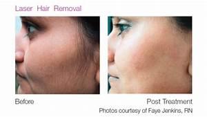 Laser Hair Removal - Herron Dermatology & Laser