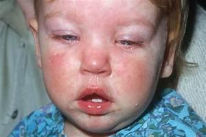 Measles, Mumps & Rubella