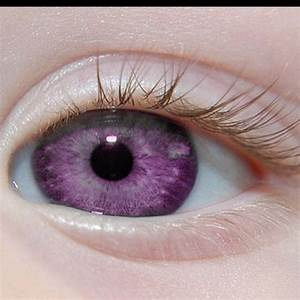 Albinism, Ocular