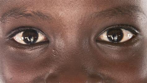 eyes protecting sight sightsavers