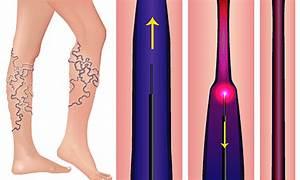 Laser treatment for spider leg vein removal - Sydney Vein ...