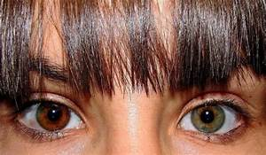 What Is Central Heterochromia (with Pictures)? | New ...