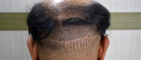 Don't get suckered by a BAD Hair Transplant! Part 2 - Bald