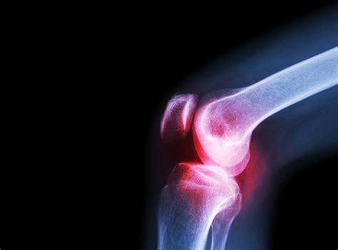 osteoarthritis   caused  senescent cells study