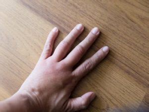 6 Reasons Your Fingers are Swollen