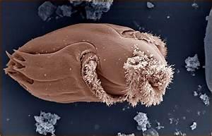 Nustatyta kaip susidaro antibiotikams atsparūs mikrobai ...
