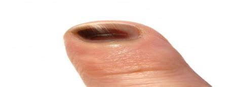 thumb nail bed injury nail ftempo