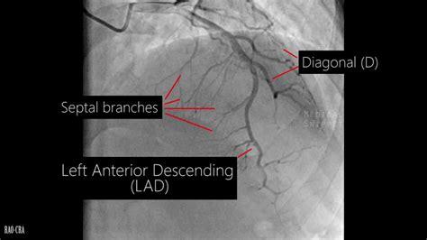 Angiogram Alo
