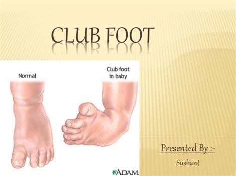 Clubfoot doesn't improve without treatment. Club foot