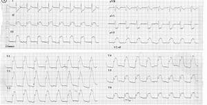 Gross St Elevation On The Inferior And Anterior Precordial