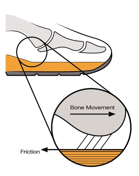 Foot Blister Diagram by Friction Blister Diagram Diagrams Catalogue