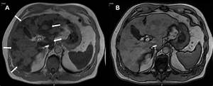 Mri Showing Focal Iron  Notes  Axial Porta Hepatis In