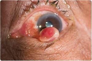 Pyogenic Granuloma / Capillary Hemangioma
