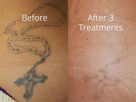 Laser Tattoo Removal Portland laser tattoo removal salmon creek plastic surgery 1024 x 768 · jpeg