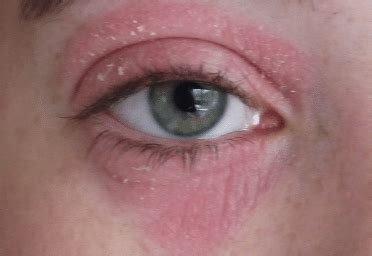 dry skin  eyelid red burning  eyes irritated