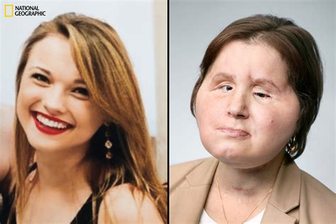 Katie Stubblefield On Adjusting To A Face Transplant Time