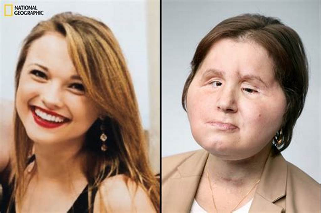 #Katie #Stubblefield #On #Adjusting #To #A #Face #Transplant
