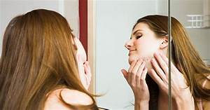 Awesome How Long The Patients Who Have Cystic Acne Undergo