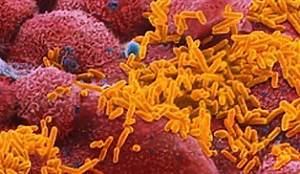 Haemophilus influenzae.jpg - PhylomeDB v4 Meningitis - H. influenzae